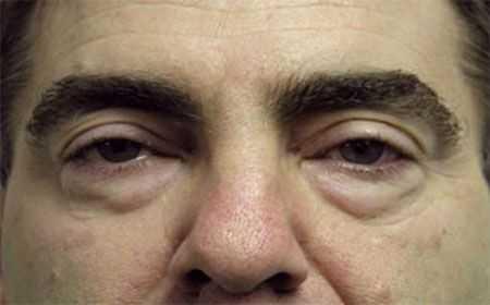 Aprende a eliminar las bolsas de los ojos