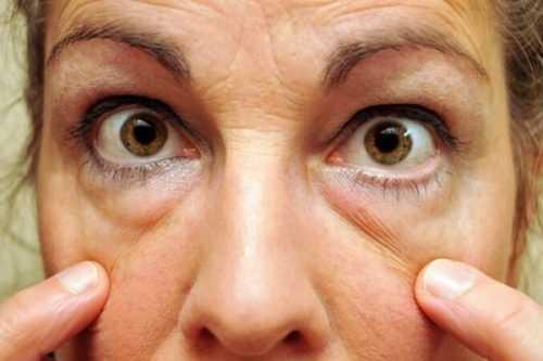Eliminar las bolsas de los ojos con 3 prácticos consejos.