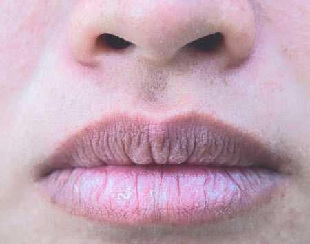 Remedios para eliminar las grietas de los labios