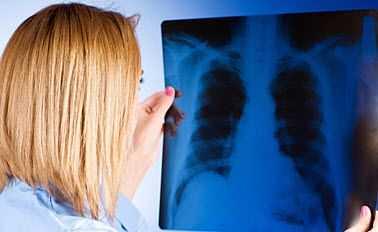 metastasis pulmones