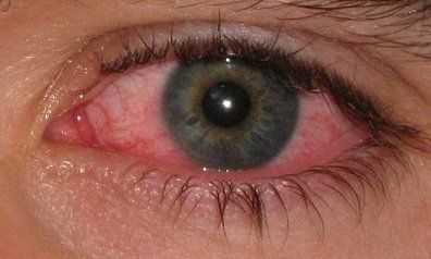 picazon en los ojos